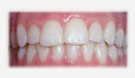 Blanqueamiento dental resultados