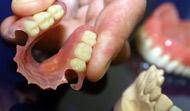Existen distintos tipos de prótesis, Prótesis de Resina,  Esquelético, Flexible (de Valplast)