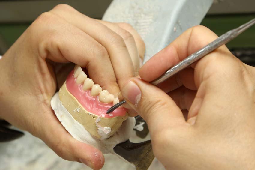 protesicos dentales madrid