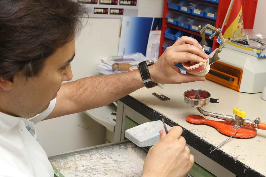 protesis dentales madrid