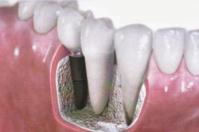 Implante dental Madrid