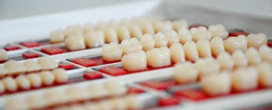 Por qué reemplazar piezas perdidas con prótesis dentales