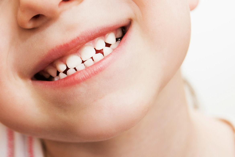 primeros dientes