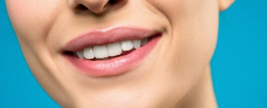 Resolvemos las dudas más frecuentes sobre el blanqueamiento dental